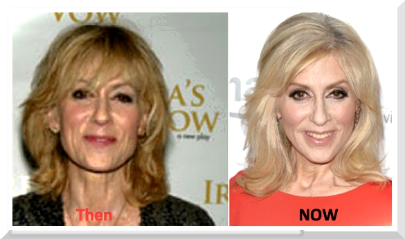 Judith Ellen Light Plastic Surgery – What's With The Made-Up Beauty