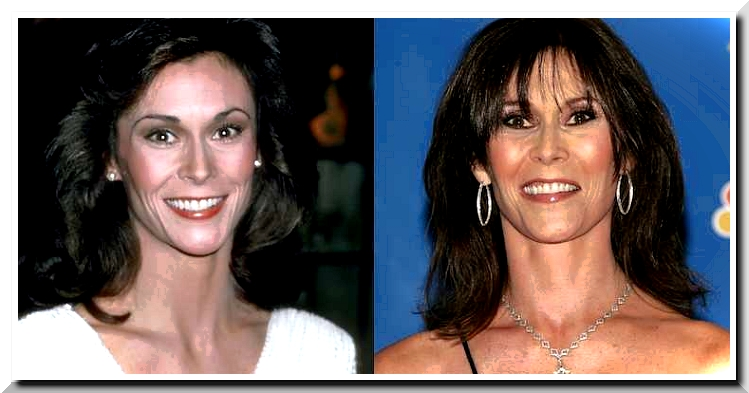 Kate Jackson Plastic Surgery – Is it another fake beauty?
