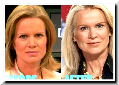 Latest Katty Kay Plastic Surgery Rumors